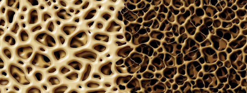 Witamina K2 może skutecznie zapobiegać osteoporozie