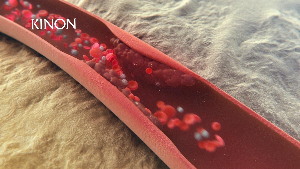 Witamina K2 pozytywnie wpływa na profilaktykę miażdżycy i zawałów serca